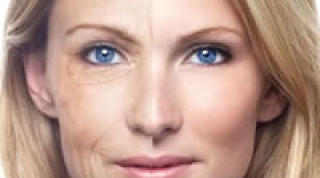 Što je to Mezoterapija dermo-rollerima?